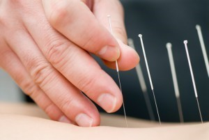 acupunture Collingwood ON