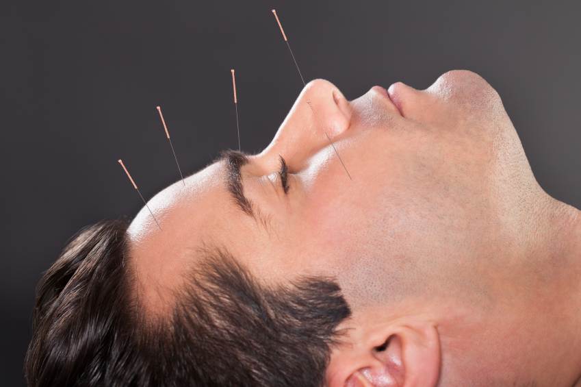 The Benefits of Acupuncture